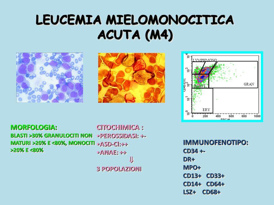LEUCEMIA MIELOMONOCITICA ACUTA (M4) MORFOLOGIA: BLASTI >30% GRANULOCITI NON MATURI >20% E 20% E 30% GRANULOCITI NON MATURI >20% E 20% E <80%MORFOLOGIA