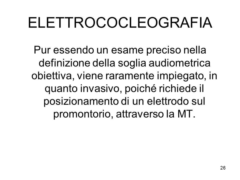 26 ELETTROCOCLEOGRAFIA Pur essendo un esame preciso nella definizione della soglia audiometrica obiettiva, viene raramente impiegato, in quanto invasivo, poiché richiede il posizionamento di un elettrodo sul promontorio, attraverso la MT.