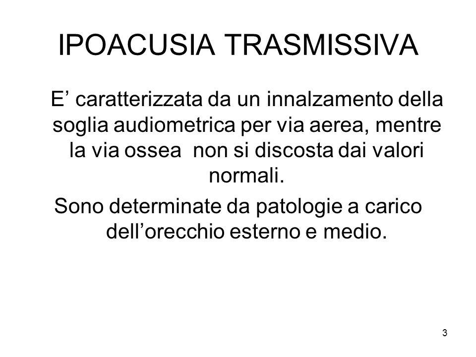 3 IPOACUSIA TRASMISSIVA E' caratterizzata da un innalzamento della soglia audiometrica per via aerea, mentre la via ossea non si discosta dai valori normali.
