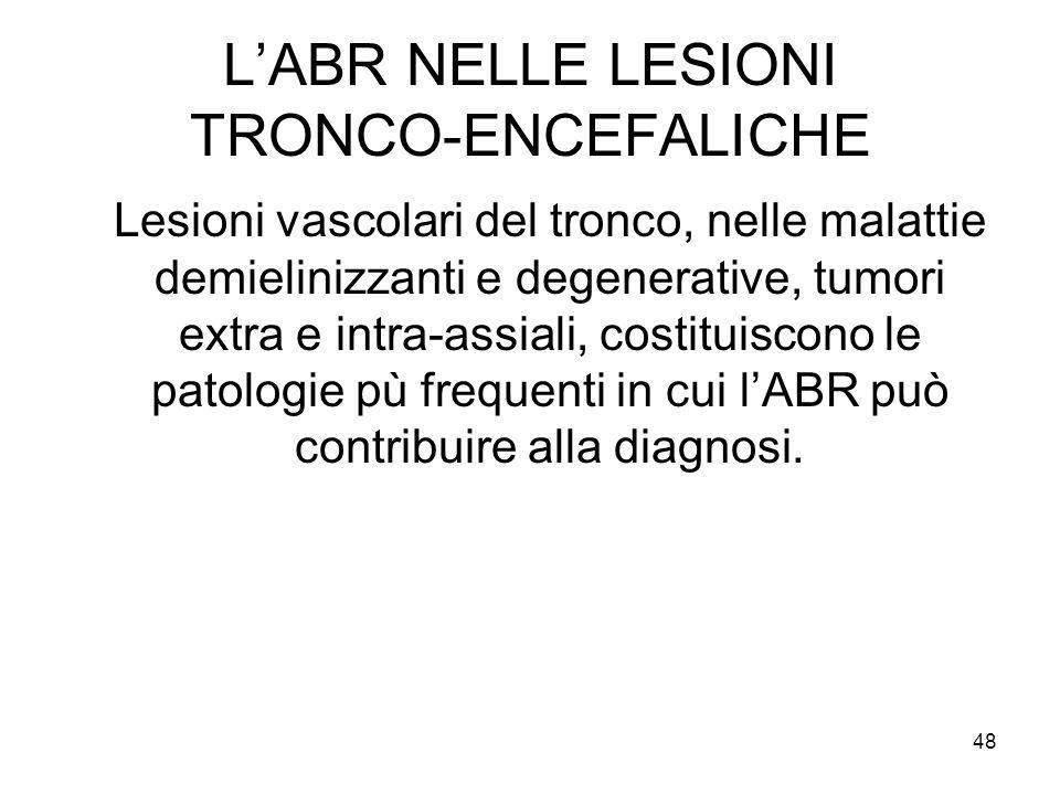 48 L'ABR NELLE LESIONI TRONCO-ENCEFALICHE Lesioni vascolari del tronco, nelle malattie demielinizzanti e degenerative, tumori extra e intra-assiali, costituiscono le patologie pù frequenti in cui l'ABR può contribuire alla diagnosi.
