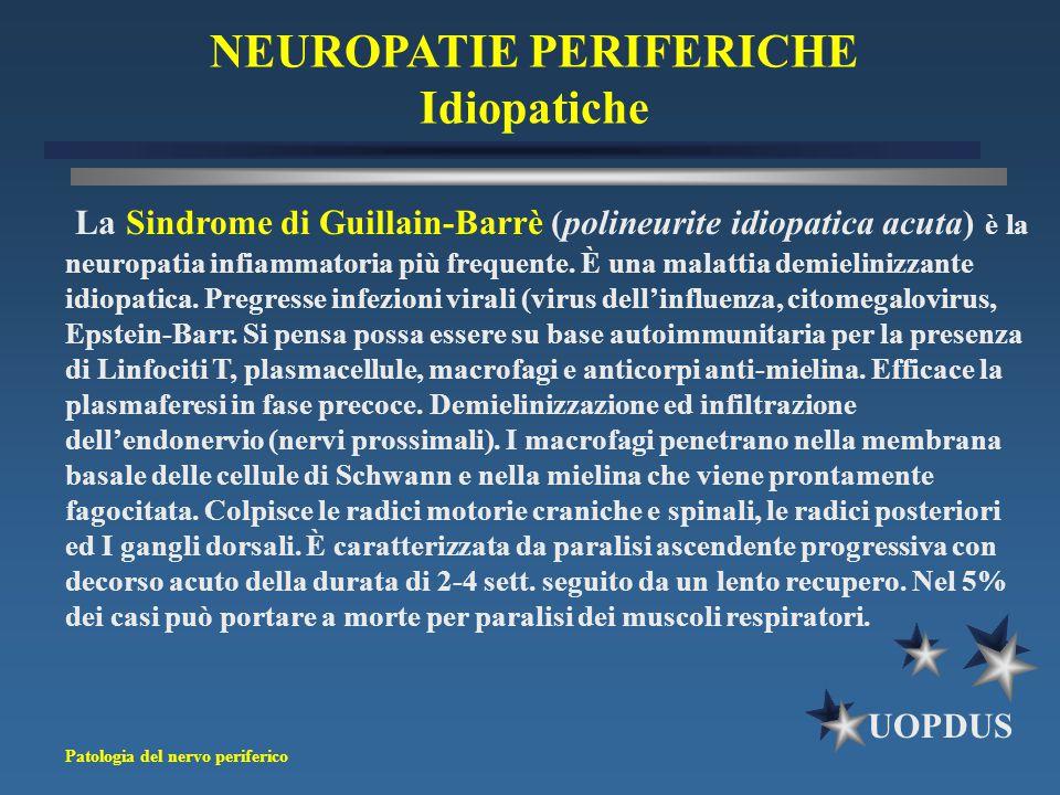 Patologia del nervo periferico UOPDUS NEUROPATIE PERIFERICHE Idiopatiche La Sindrome di Guillain-Barrè (polineurite idiopatica acuta) è la neuropatia