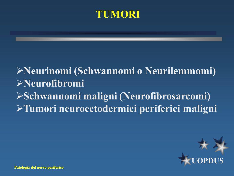 Patologia del nervo periferico UOPDUS TUMORI  Neurinomi (Schwannomi o Neurilemmomi)  Neurofibromi  Schwannomi maligni (Neurofibrosarcomi)  Tumori