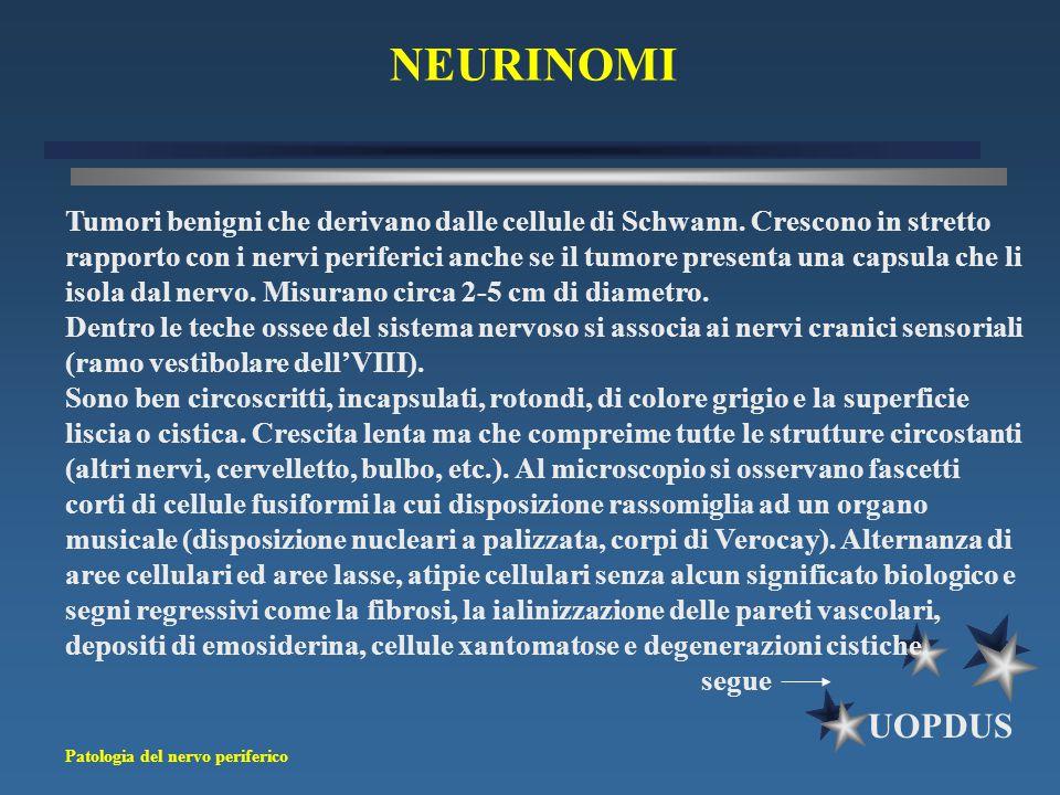 Patologia del nervo periferico UOPDUS Tumori benigni che derivano dalle cellule di Schwann. Crescono in stretto rapporto con i nervi periferici anche