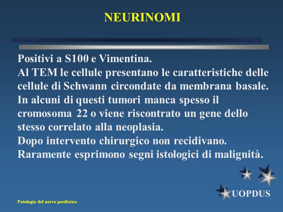 Patologia del nervo periferico UOPDUS Positivi a S100 e Vimentina. Al TEM le cellule presentano le caratteristiche delle cellule di Schwann circondate