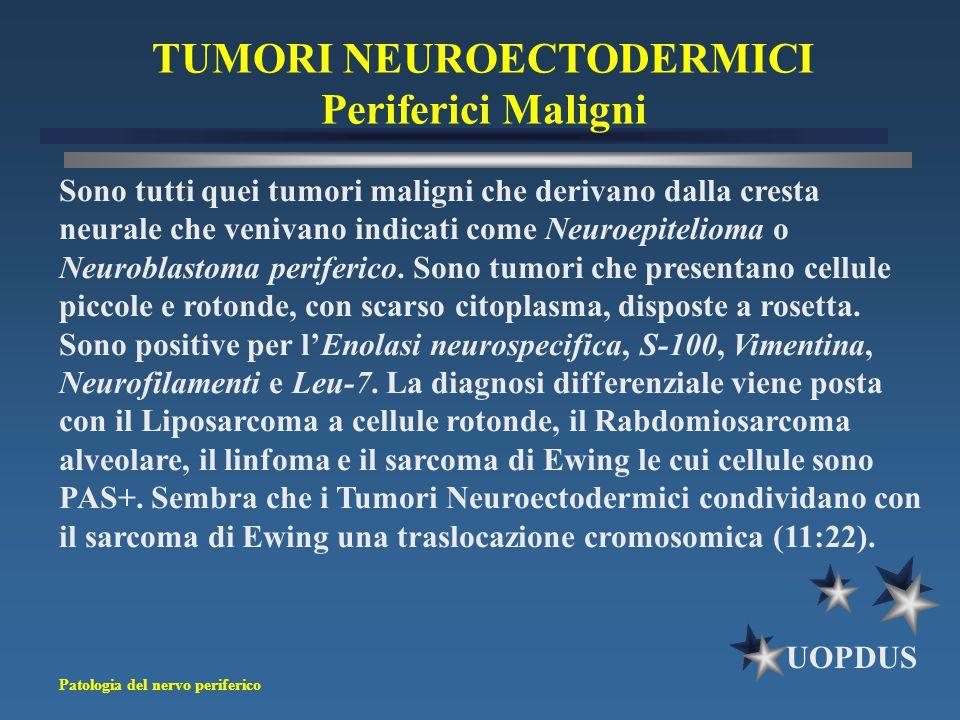 Patologia del nervo periferico UOPDUS Sono tutti quei tumori maligni che derivano dalla cresta neurale che venivano indicati come Neuroepitelioma o Ne