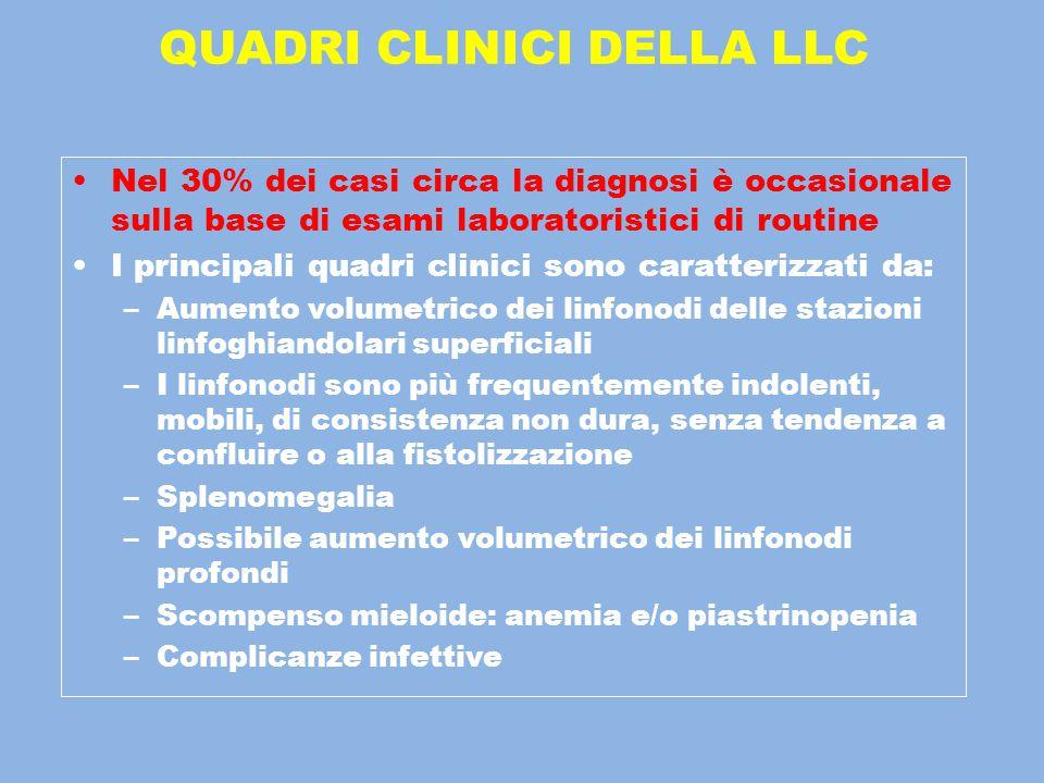 QUADRI CLINICI DELLA LLC Nel 30% dei casi circa la diagnosi è occasionale sulla base di esami laboratoristici di routine I principali quadri clinici s