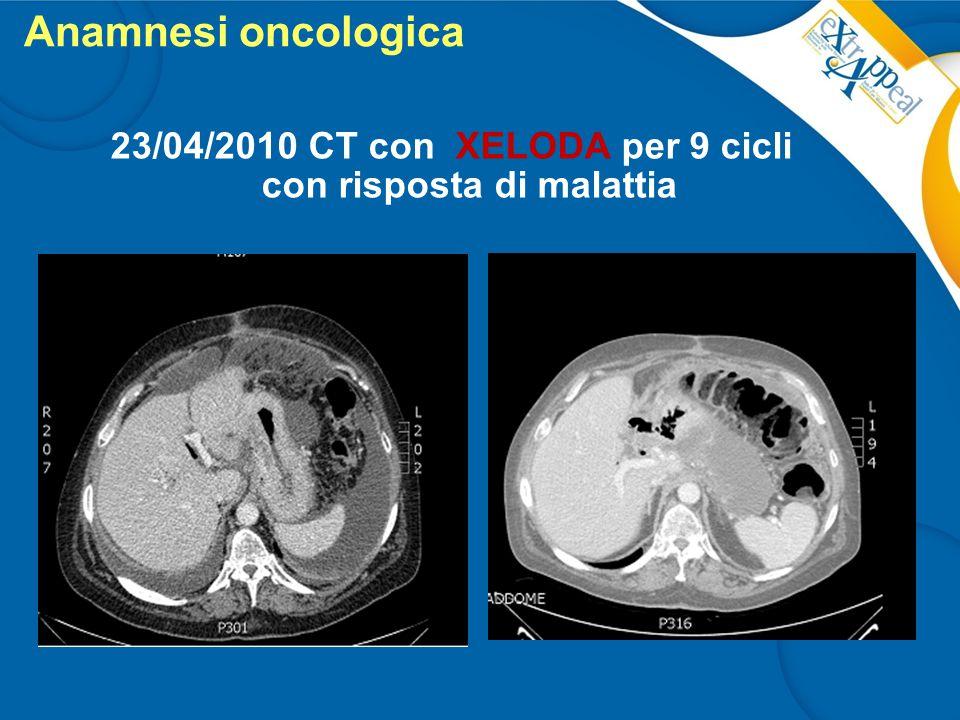 Anamnesi oncologica 23/04/2010 CT con XELODA per 9 cicli con risposta di malattia