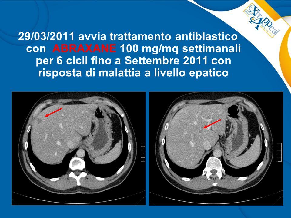 29/03/2011 avvia trattamento antiblastico con ABRAXANE 100 mg/mq settimanali per 6 cicli fino a Settembre 2011 con risposta di malattia a livello epat
