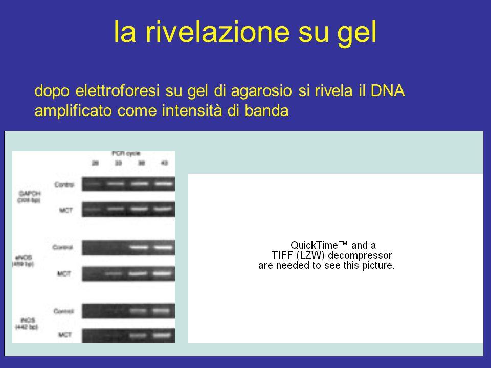 la rivelazione su gel dopo elettroforesi su gel di agarosio si rivela il DNA amplificato come intensità di banda
