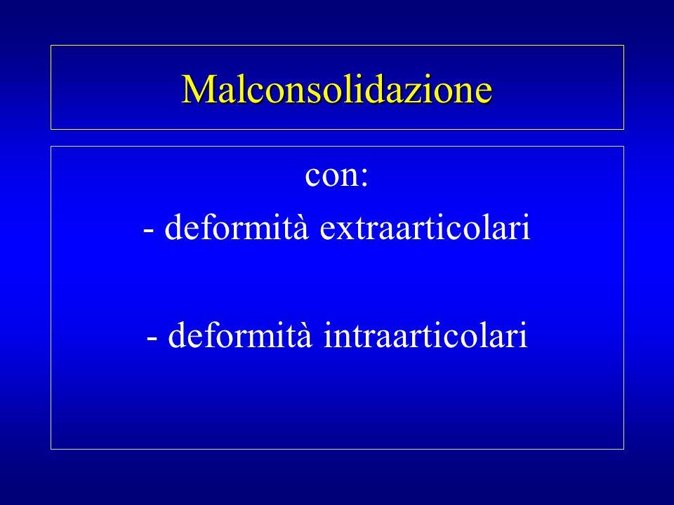 Malconsolidazione con: - deformità extraarticolari - deformità intraarticolari