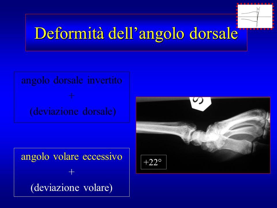 Deformità dell'angolo dorsale angolo dorsale invertito + (deviazione dorsale) angolo volare eccessivo + (deviazione volare) +22°