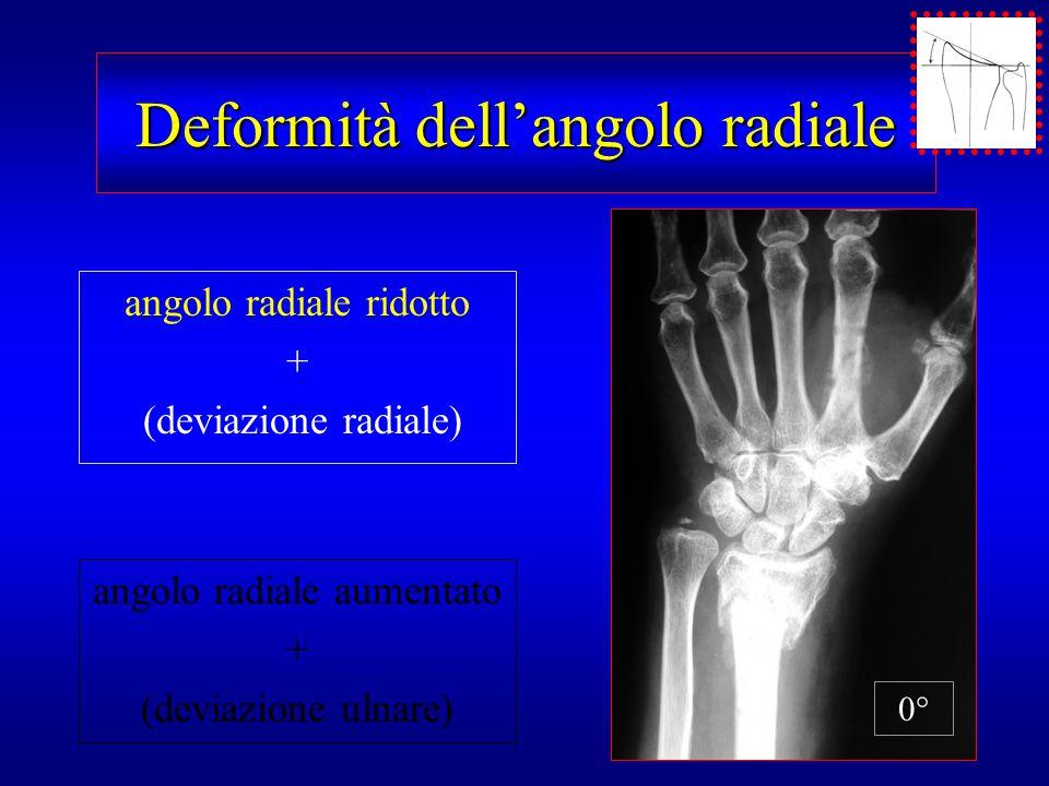 Deformità dell'angolo radiale angolo radiale ridotto + (deviazione radiale) angolo radiale aumentato + (deviazione ulnare) 0°