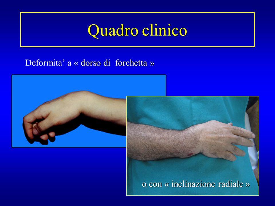…le fratture di Colles sono un marker per un futuro rischio di fratture di anca… Owen R A, Clin Orthop, 1982, 171: 37-43.