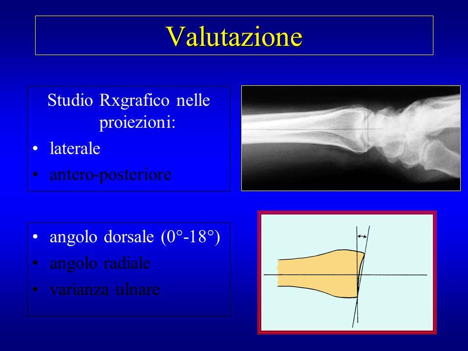 Valutazione Studio Rxgrafico nelle proiezioni: laterale antero-posteriore angolo dorsale angolo radiale (16°-28°) varianza ulnare