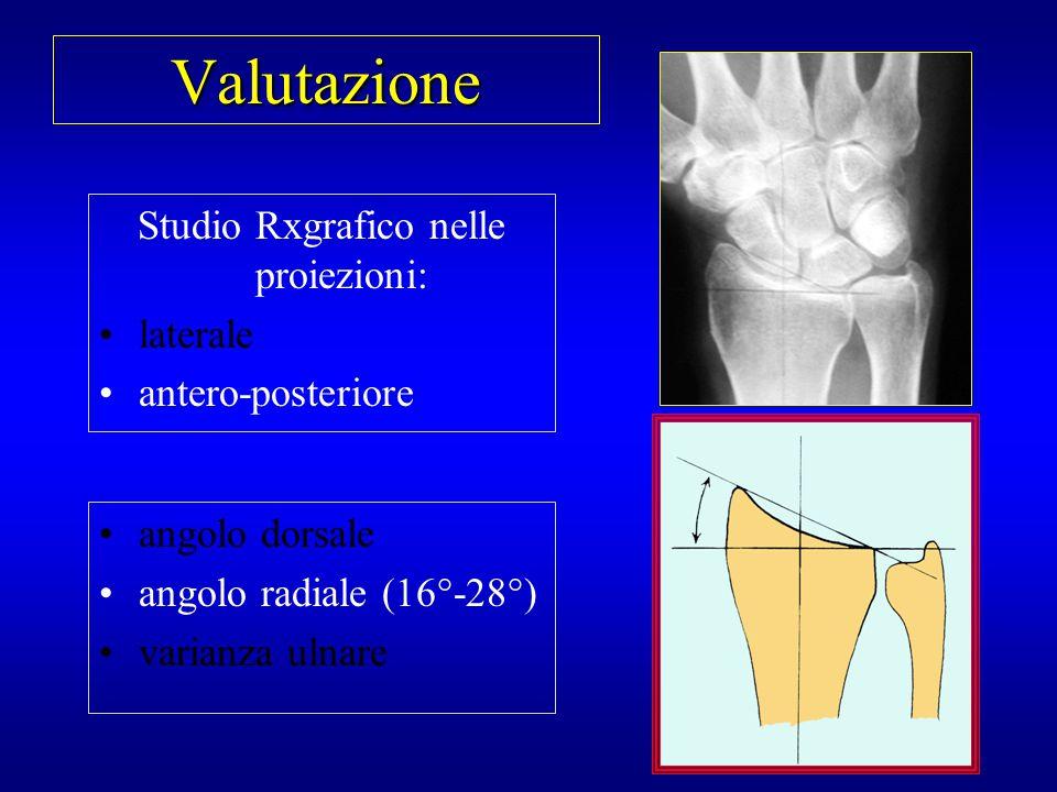 Valutazione Studio Rxgrafico nelle proiezioni: laterale antero-posteriore angolo dorsale angolo radiale varianza ulnare (-2/+3 mm)