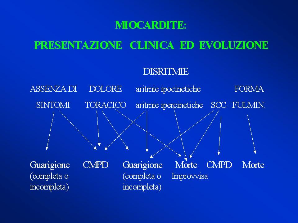 Arrhythmogenic right ventricular dysplasia C U V I