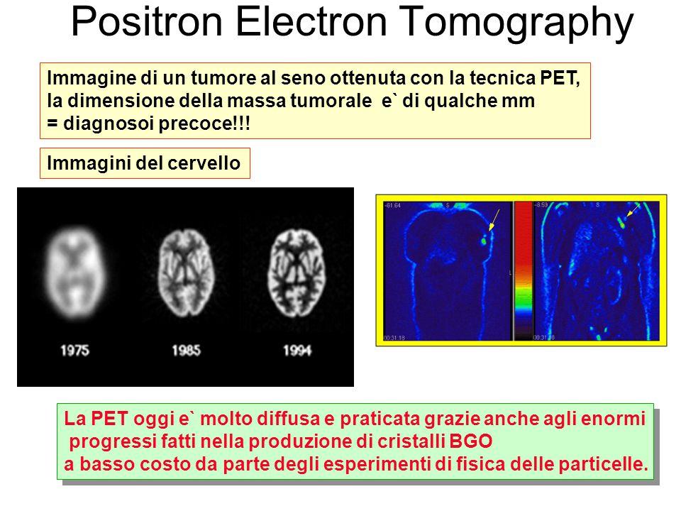 Immagine di un tumore al seno ottenuta con la tecnica PET, la dimensione della massa tumorale e` di qualche mm = diagnosoi precoce!!.