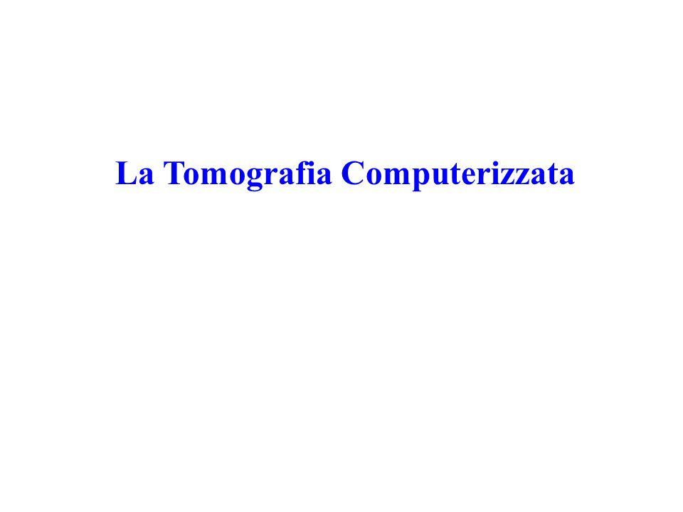 La Tomografia Computerizzata