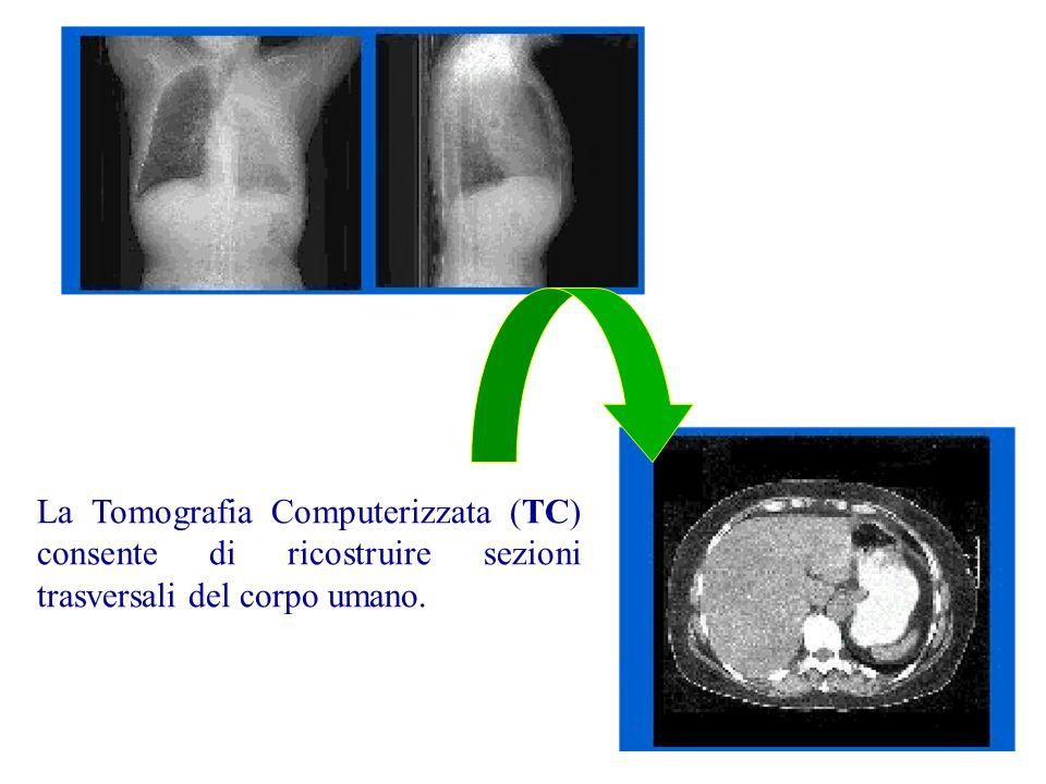 La Tomografia Computerizzata (TC) consente di ricostruire sezioni trasversali del corpo umano.