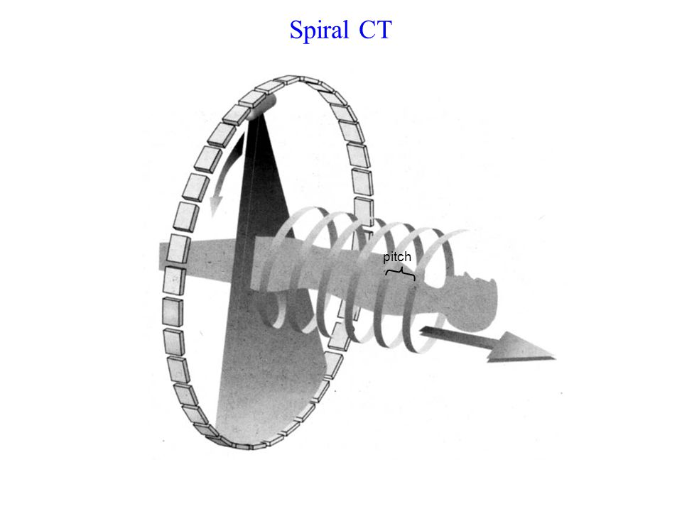 Spiral CT Continuous linear motion of patient table during multiple scans Increased coverage volume / rotation Pitch: Number of slice thicknesses the table moves during one rotation (typically ~1-2) pitch