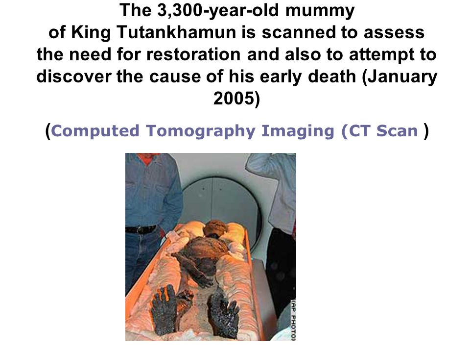 The 3,300-year-old mummy of King Tutankhamun is scanned to assess the need for restoration and also to attempt to discover the cause of his early death (January 2005) ( Computed Tomography Imaging (CT Scan )