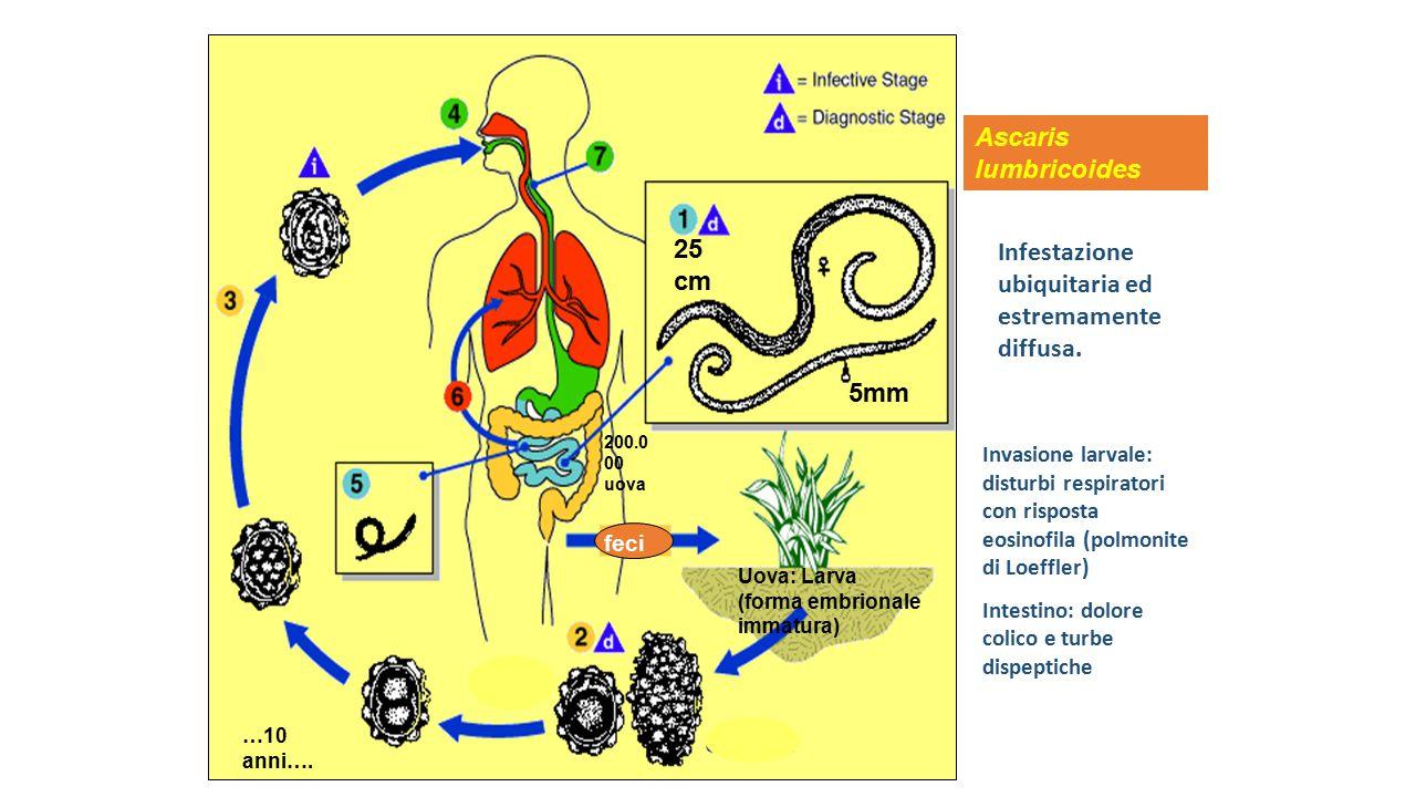Ascaris lumbricoides Infestazione ubiquitaria ed estremamente diffusa.