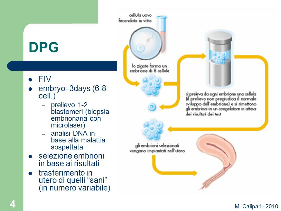 M. Calipari - 2010 4 DPG FIV embryo- 3days (6-8 cell.) – prelievo 1-2 blastomeri (biopsia embrionaria con microlaser) – analisi DNA in base alla malat