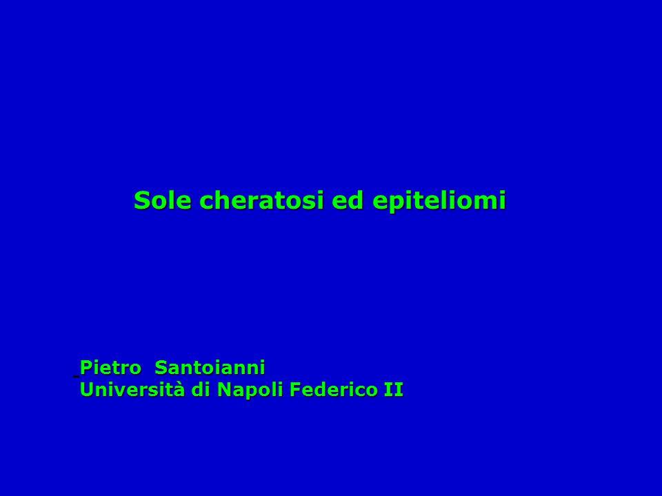 Sole cheratosi ed epiteliomi Pietro Santoianni Università di Napoli Federico II Università di Napoli Federico II