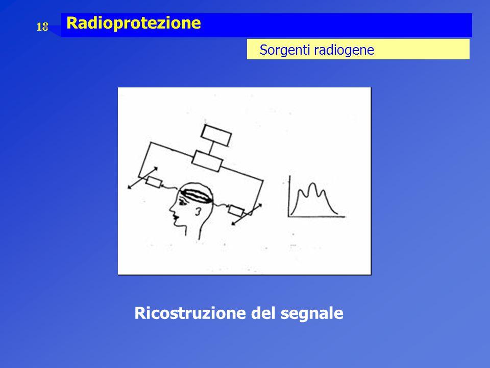 18 Radioprotezione Sorgenti radiogene Ricostruzione del segnale