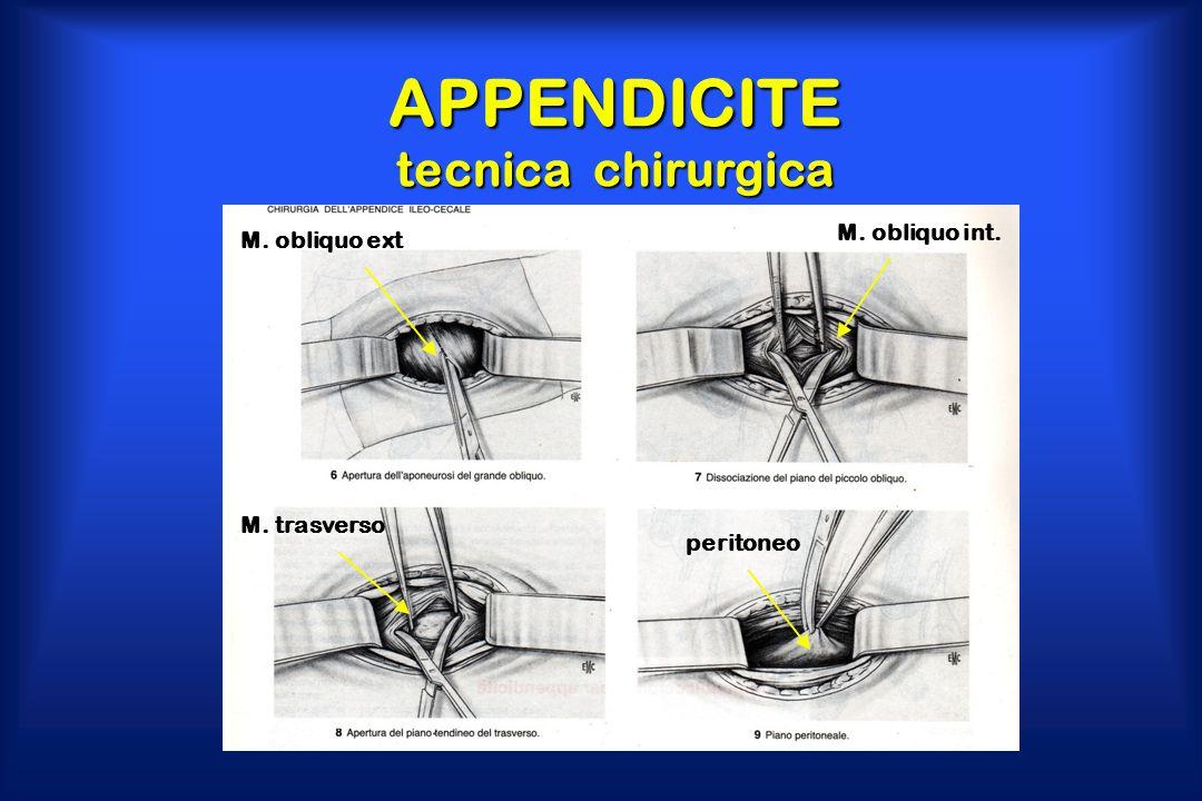 APPENDICITE tecnica chirurgica M. obliquo ext M. obliquo int. M. trasverso peritoneo