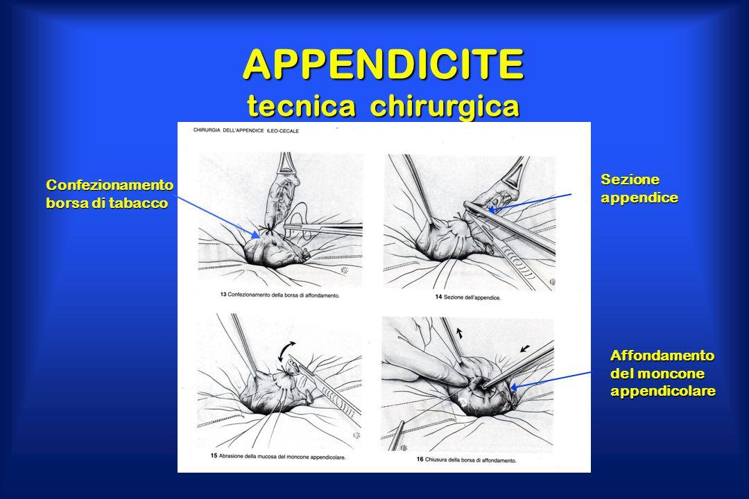 APPENDICITE tecnica chirurgica Confezionamento borsa di tabacco Sezione appendice Affondamento del moncone appendicolare