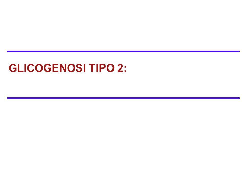 GLICOGENOSI TIPO 2: