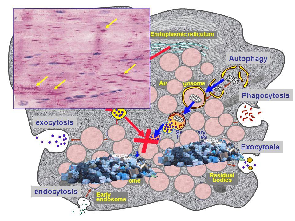 Autophagy Phagocytosis Exocytosis Autophagosome exocytosis endocytosis Primary lysosomes Secondary lysosomes Residual bodies Early endosome Late endos