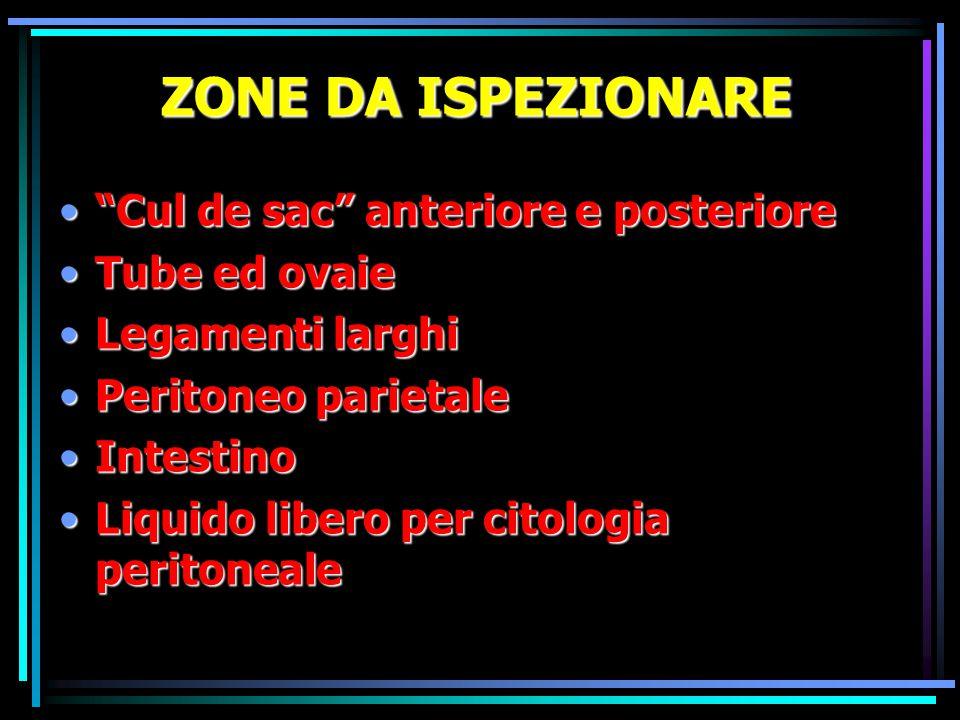 """ZONE DA ISPEZIONARE """"Cul de sac"""" anteriore e posteriore""""Cul de sac"""" anteriore e posteriore Tube ed ovaieTube ed ovaie Legamenti larghiLegamenti larghi"""