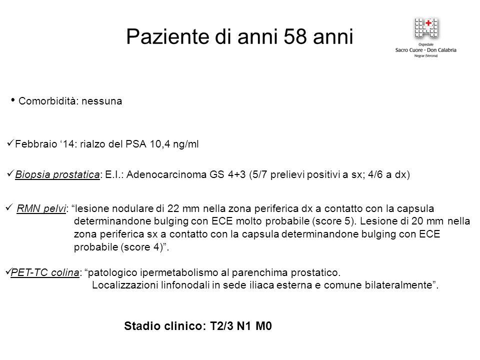 Paziente di anni 58 anni Comorbidità: nessuna Febbraio '14: rialzo del PSA 10,4 ng/ml Biopsia prostatica: E.I.: Adenocarcinoma GS 4+3 (5/7 prelievi positivi a sx; 4/6 a dx) RMN pelvi: lesione nodulare di 22 mm nella zona periferica dx a contatto con la capsula determinandone bulging con ECE molto probabile (score 5).