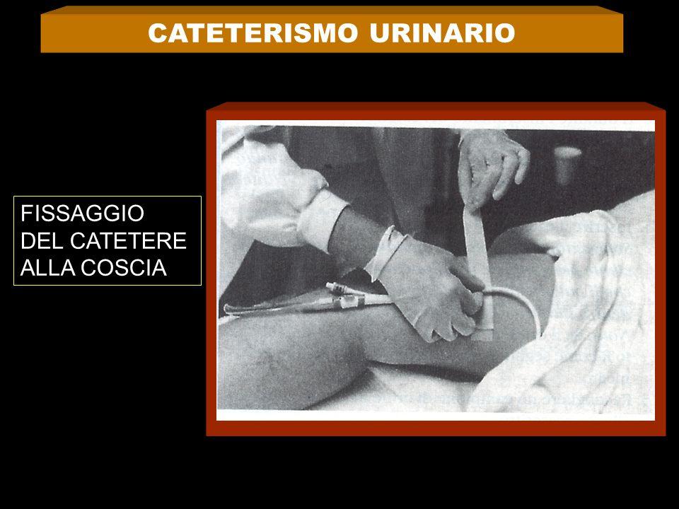 CATETERISMO URINARIO FISSAGGIO DEL CATETERE ALLA COSCIA