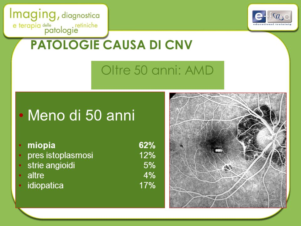 Meno di 50 anni miopia62% pres istoplasmosi 12% strie angioidi 5% altre 4% idiopatica17% PATOLOGIE CAUSA DI CNV Oltre 50 anni: AMD