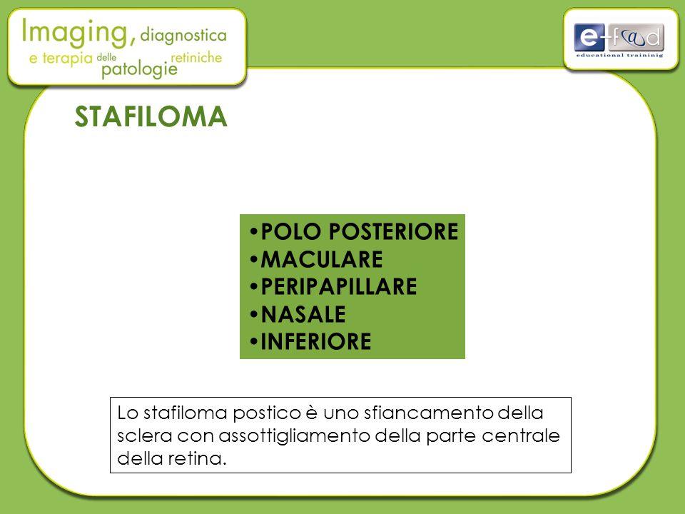 STAFILOMA POLO POSTERIORE MACULARE PERIPAPILLARE NASALE INFERIORE Lo stafiloma postico è uno sfiancamento della sclera con assottigliamento della parte centrale della retina.