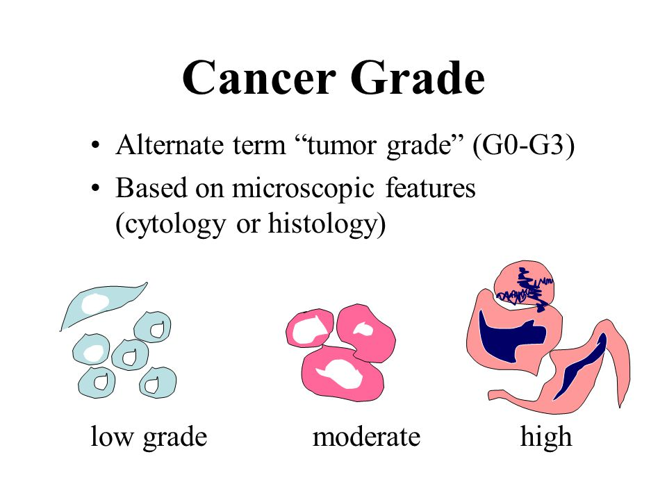 "Cancer Grade Alternate term ""tumor grade"" (G0-G3) Based on microscopic features (cytology or histology) low grade moderate high"