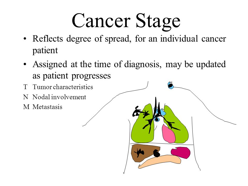 Cancer Stage Reflects degree of spread, for an individual cancer patient Assigned at the time of diagnosis, may be updated as patient progresses T Tum