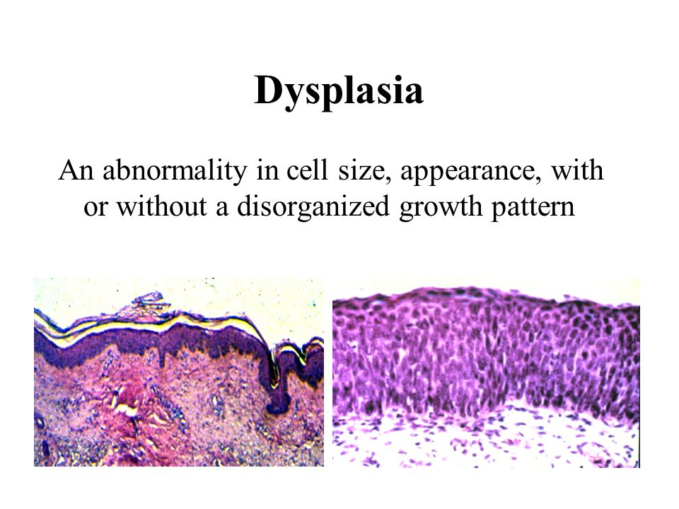 Dysplasia An abnormality in cell size, appearance, with or without a disorganized growth pattern