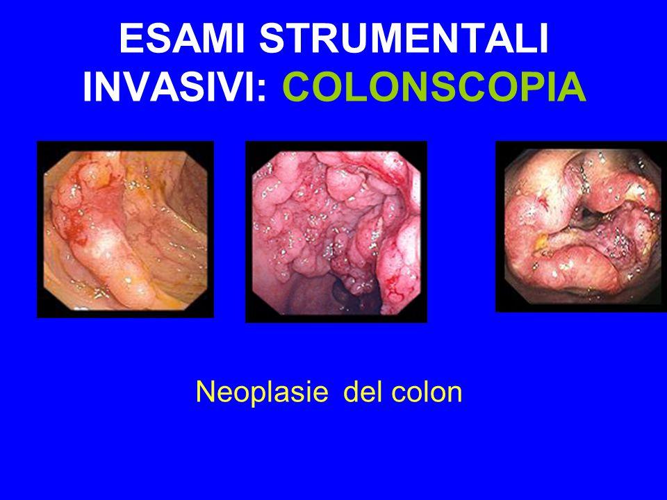 ESAMI STRUMENTALI INVASIVI: COLONSCOPIA Neoplasie del colon
