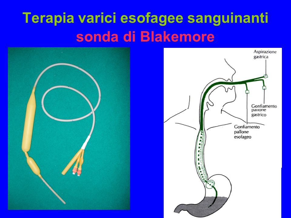 Terapia varici esofagee sanguinanti sonda di Blakemore