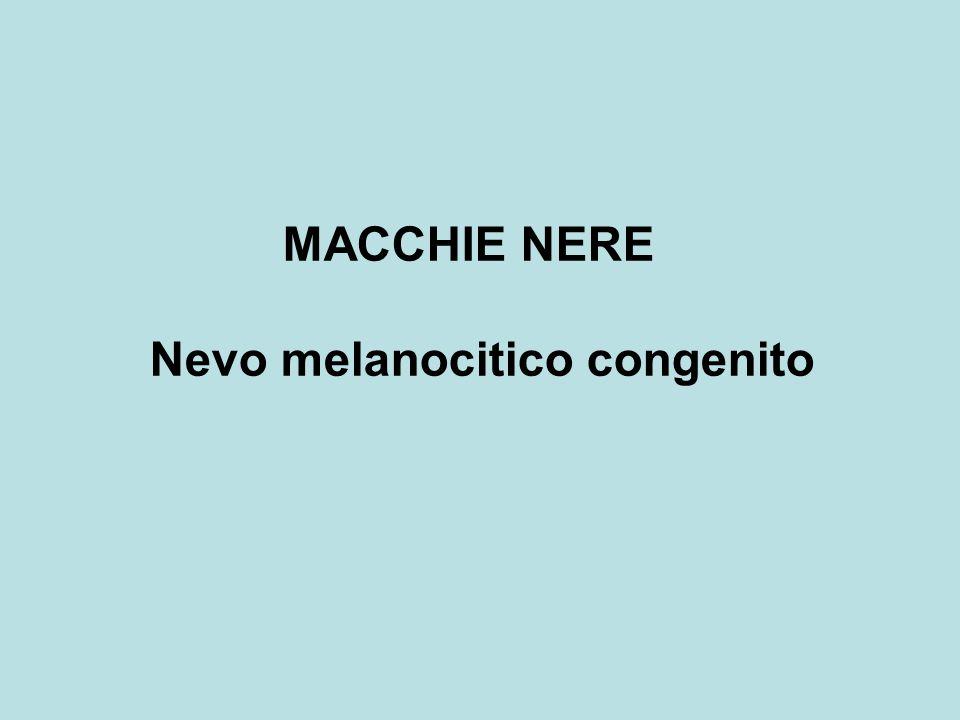 MACCHIE NERE Nevo melanocitico congenito