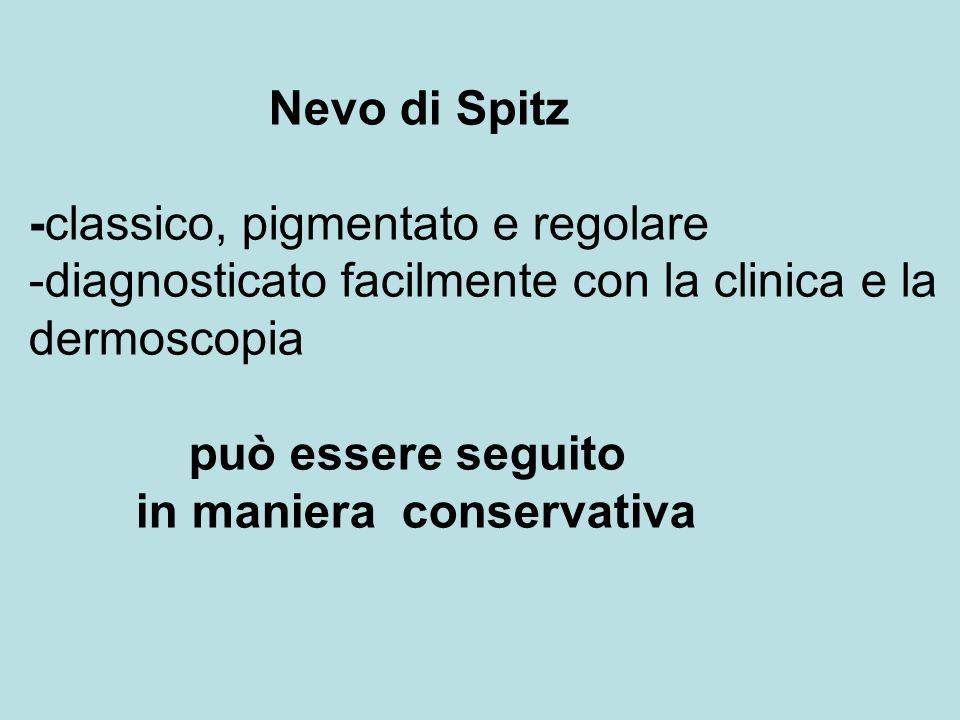 Nevo di Spitz -classico, pigmentato e regolare -diagnosticato facilmente con la clinica e la dermoscopia può essere seguito in maniera conservativa