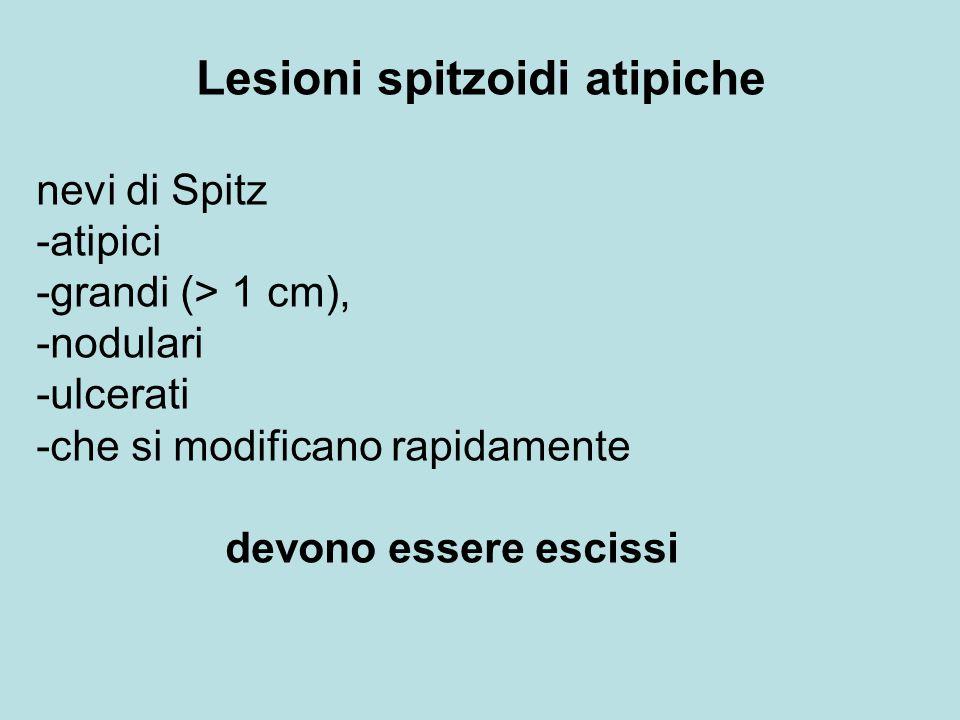 Lesioni spitzoidi atipiche nevi di Spitz -atipici -grandi (> 1 cm), -nodulari -ulcerati -che si modificano rapidamente devono essere escissi