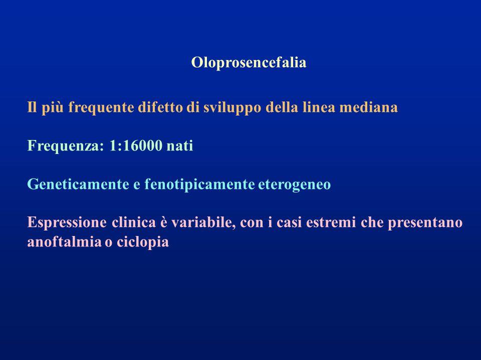 Oloprosencefalia Il più frequente difetto di sviluppo della linea mediana Frequenza: 1:16000 nati Geneticamente e fenotipicamente eterogeneo Espressione clinica è variabile, con i casi estremi che presentano anoftalmia o ciclopia