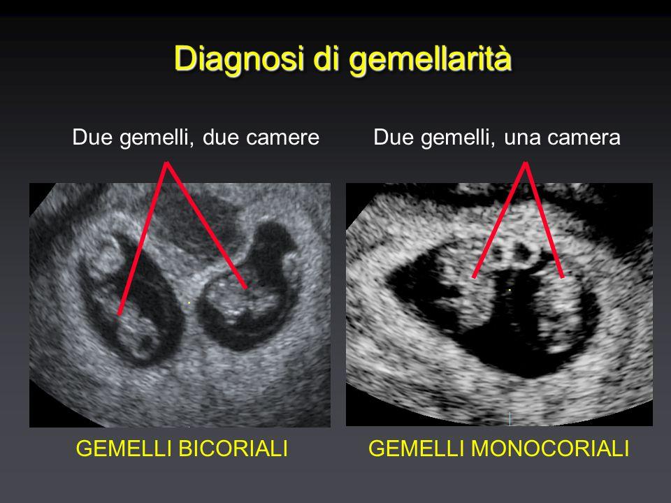 Diagnosi di gemellarità Due gemelli, due camereDue gemelli, una camera GEMELLI BICORIALIGEMELLI MONOCORIALI