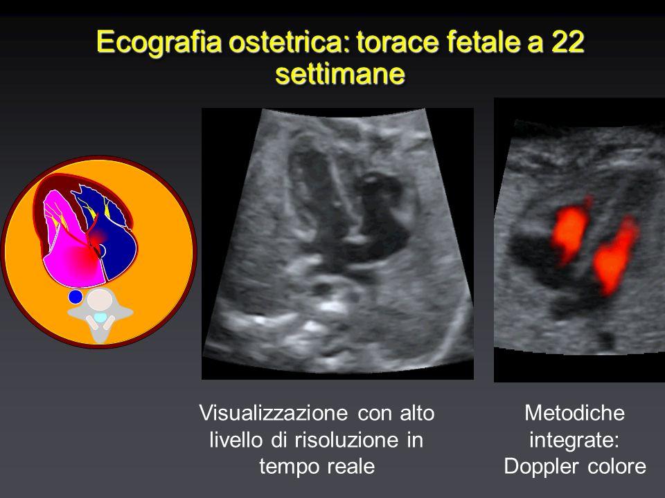 Ecografia ostetrica: torace fetale a 22 settimane Visualizzazione con alto livello di risoluzione in tempo reale Metodiche integrate: Doppler colore
