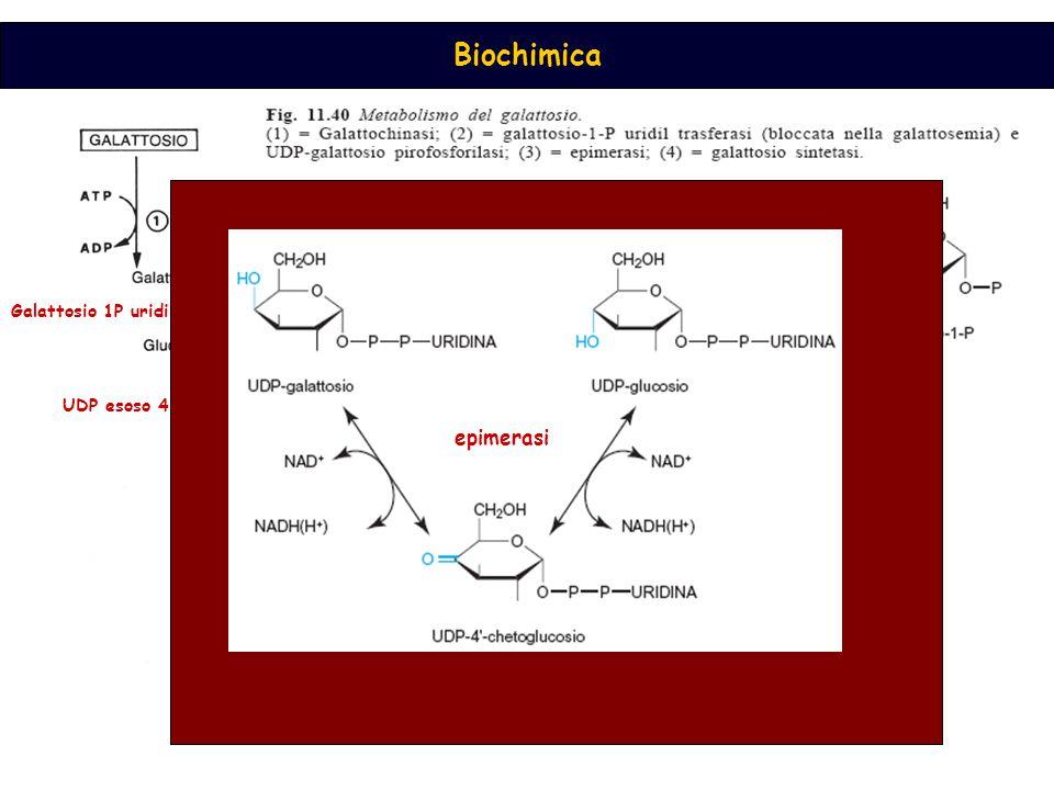Biochimica galattochinasiGalattosio 1P uridil transferasi UDP esoso 4 epimerasi epimerasi